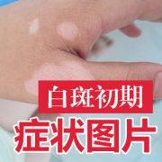 手部白癜风症状图片